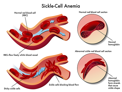 Sickle Cell Anemia blood cells