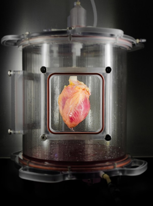 Full-sized human heart grown from stem cells